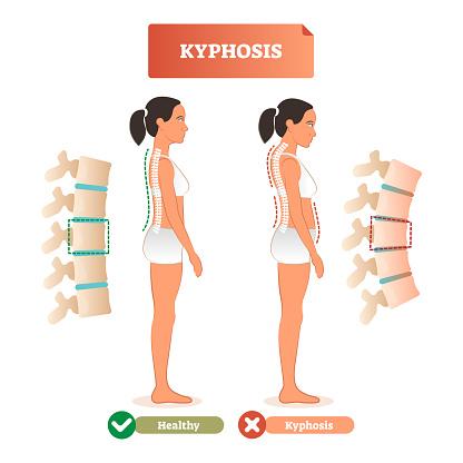Kyphosis vector illustration. Back spine defect diagnosis vs healthy.