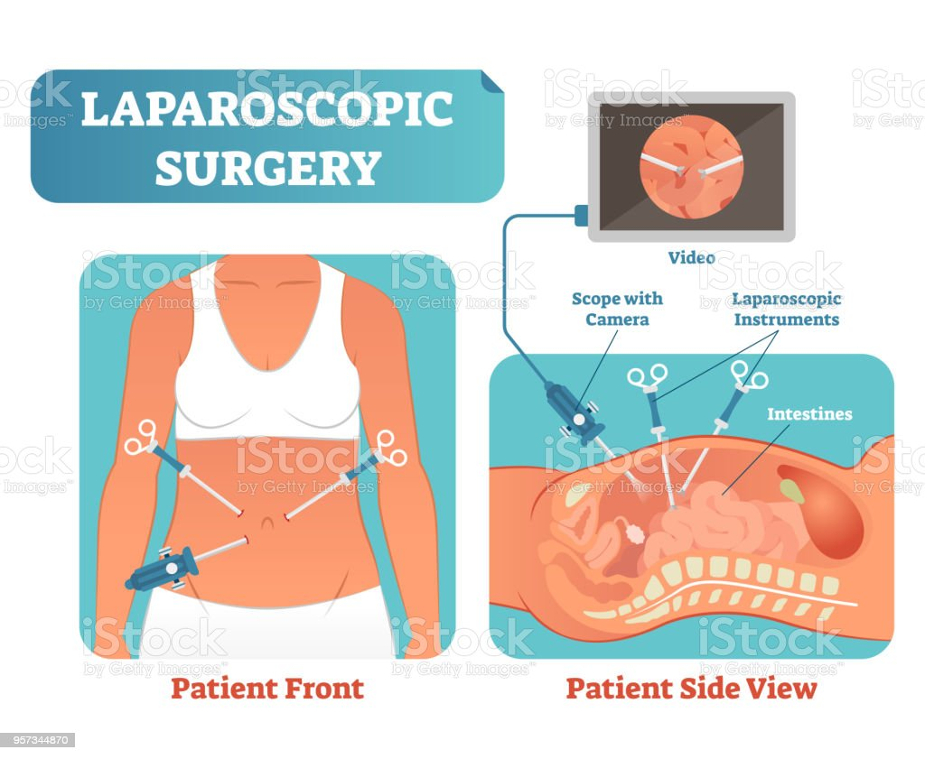 Ilustración de La Cirugía Laparoscópica Procedimiento Quirúrgico Se ...
