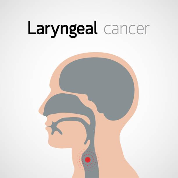 Laryngeal Cancer vector icon design illustration vector art illustration