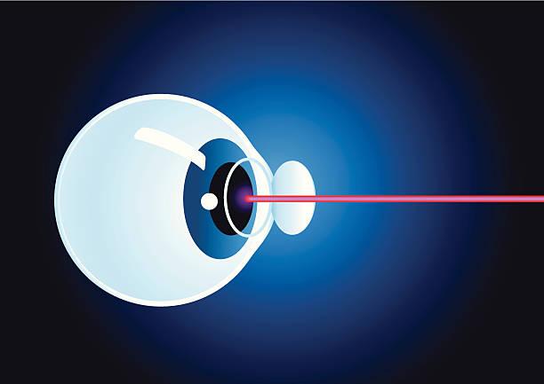 Laser eye surgery vector art illustration