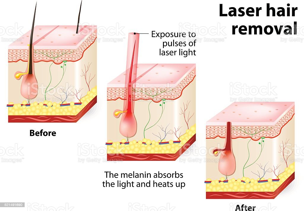 Laser Hair Removal Vector Diagram Stock Illustration - Download Image Now