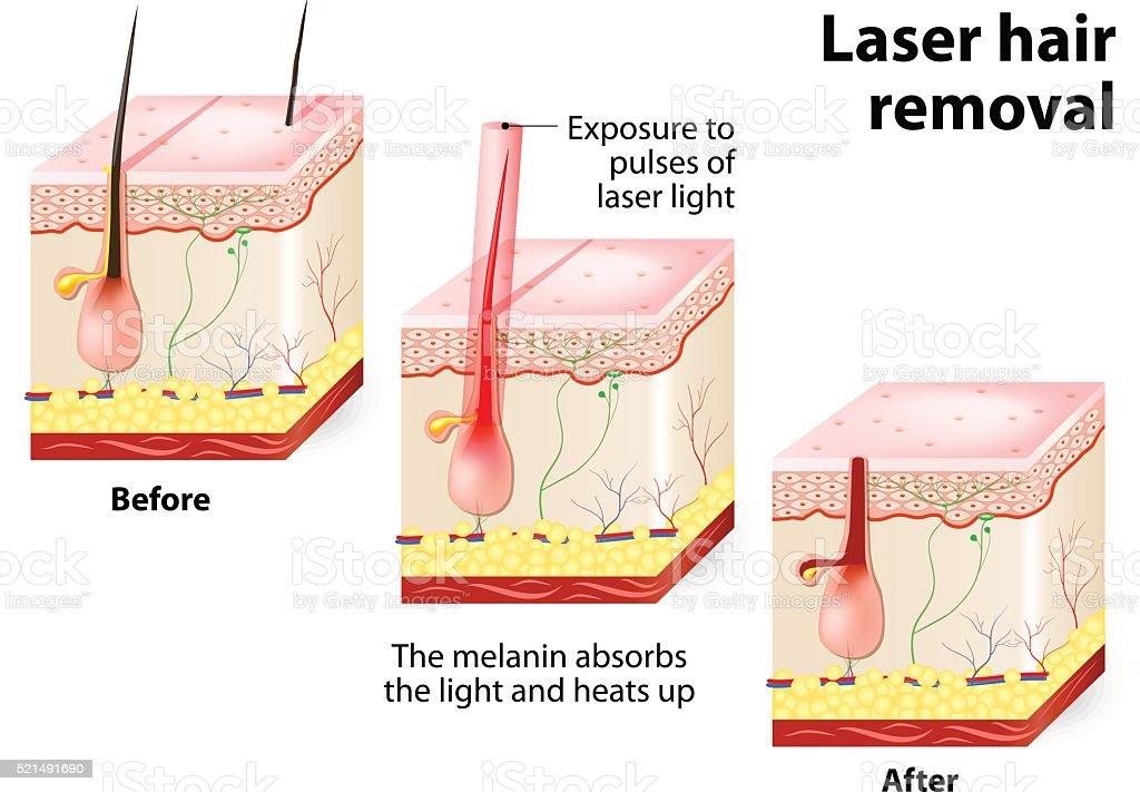 Laser hair removal. Vector diagram vector art illustration
