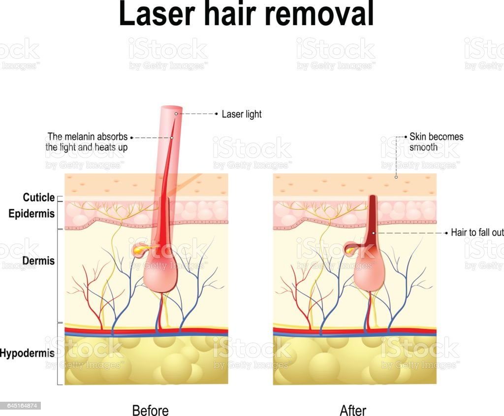 Diagram Diagram Of Laser Hair Removal Laser Hair Removal Stock