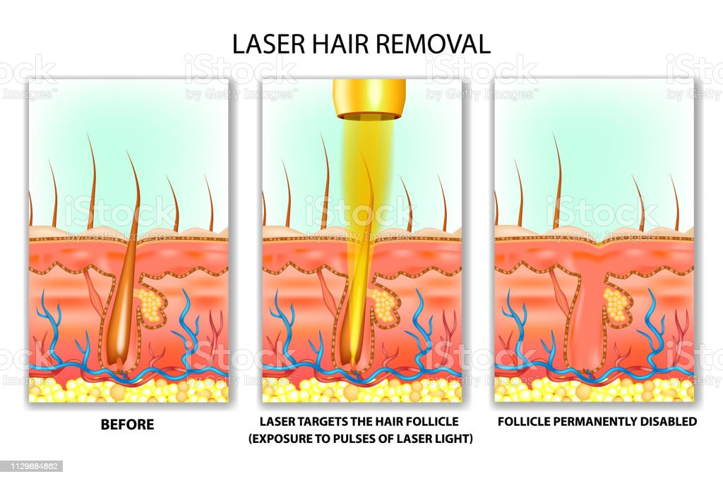 Laser Hair Removal Stock Illustration - Download Image Now