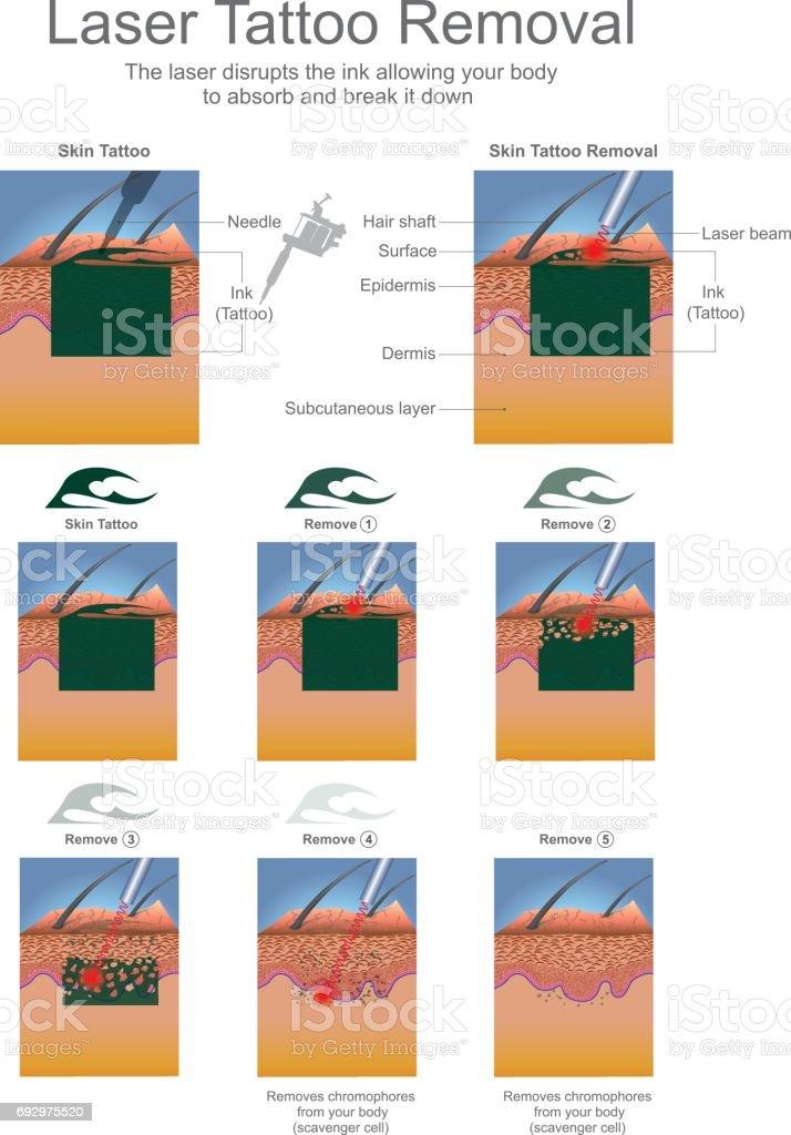 Laser Tattoo Removal vector art illustration
