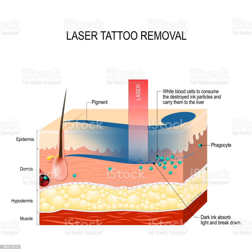 Laser tattoo removal. vector art illustration