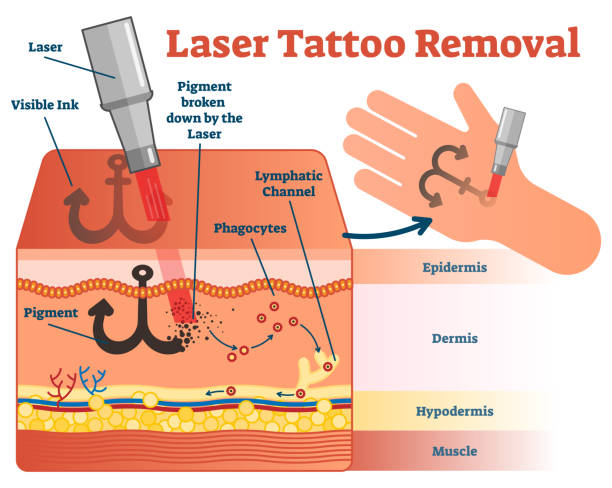 tattoo removal stock illustrations