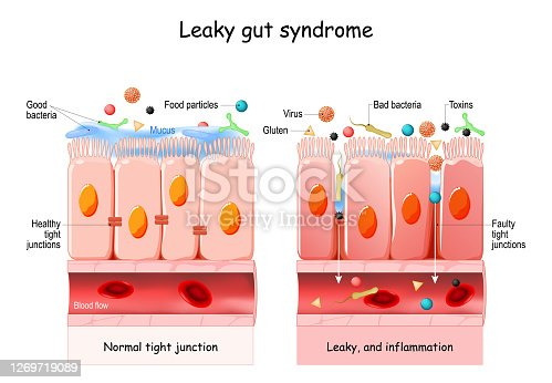 Leaky gut Syndrome. difference between Healthy cells, and inflamed intestinal cells. Comparison normal tissue of the gastrointestinal tract, and leaky gut.