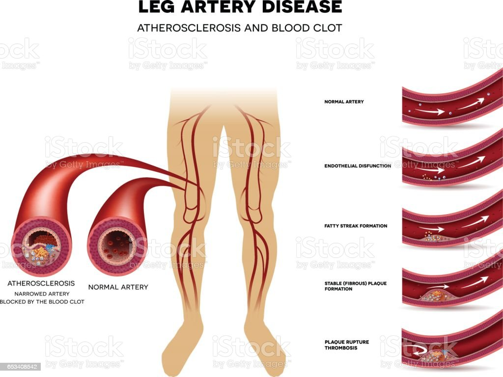 Leg artery disease, Atherosclerosis vector art illustration