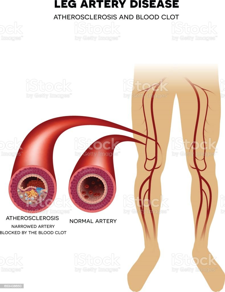Leg Artery Disease Atherosclerosis Stock Vector Art & More Images of ...