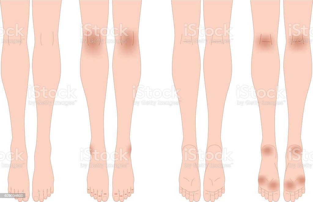 Legsdarkening Of The Skin ふくらはぎのベクターアート素材や画像を
