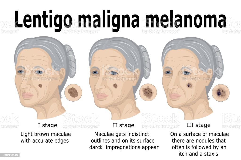 Lentigo Maligna Melanom - Lizenzfrei Alterungsprozess Vektorgrafik