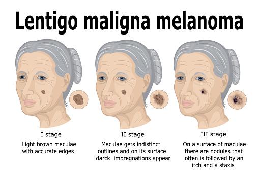 Lentigo Maligna Melanom Stock Vektor Art und mehr Bilder von Alterungsprozess