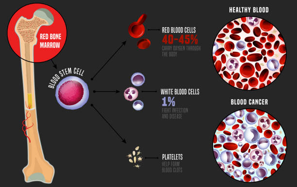 Leukemia medical infographic Leukemia and normal blood under the microscope in comparison. Medical infographic. Blood cells production scheme. Vector illustration on a grey background. Scientific concept. Horizontal poster. red blood cell stock illustrations