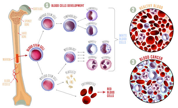 Leukemia medical infographic Leukemia and normal blood under the microscope in comparison. Medical infographic. Blood cells production scheme. Vector illustration on a white background. Scientific concept. Horizontal poster. red blood cell stock illustrations