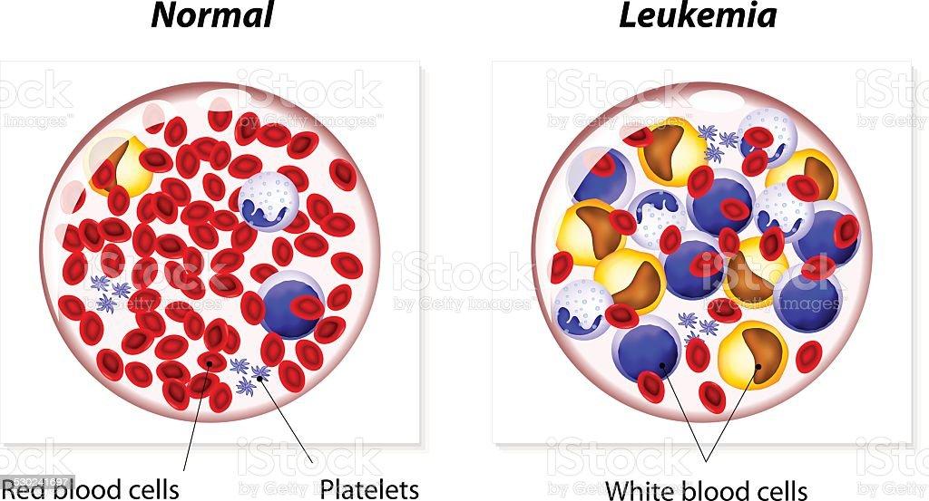 Leukemia or leukaemia vector art illustration