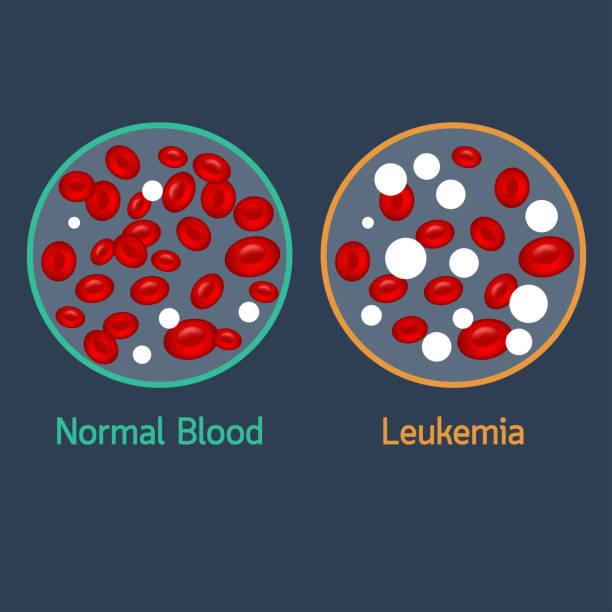 Leukemia vector icon illustration vector art illustration