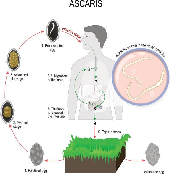 Pinworm ascariasis. gyermekek helminthiasis készítményei