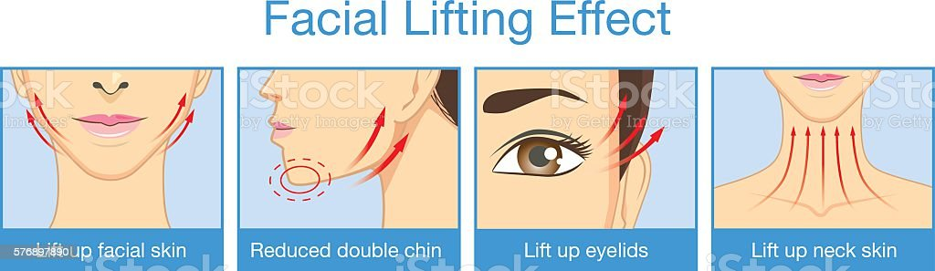 Lifting effect on facial of women vector art illustration