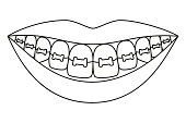 Line art black and white healthy smile in braces