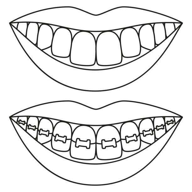 Royalty Free Black Braces For Teeth Drawing Clip Art