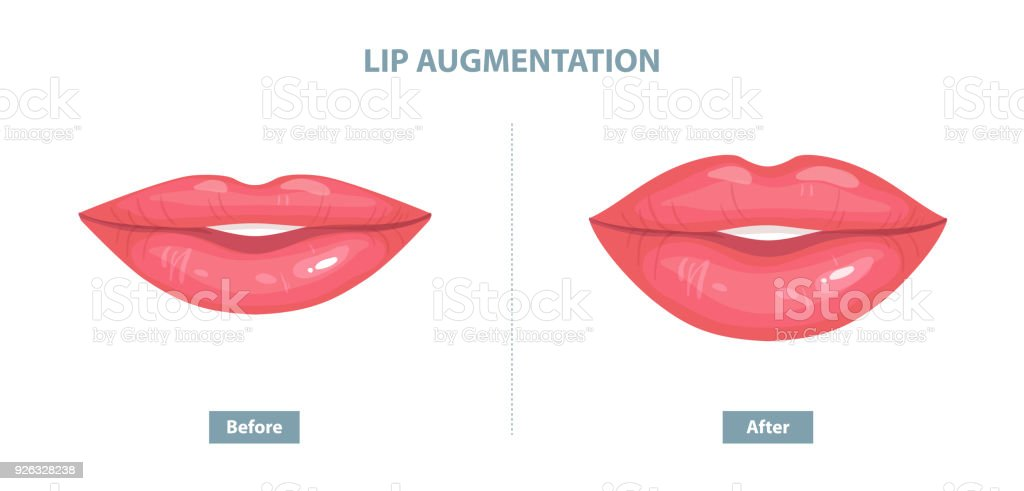 Lip Augmentation. Before and after lip filler injections. Vector illustration vector art illustration