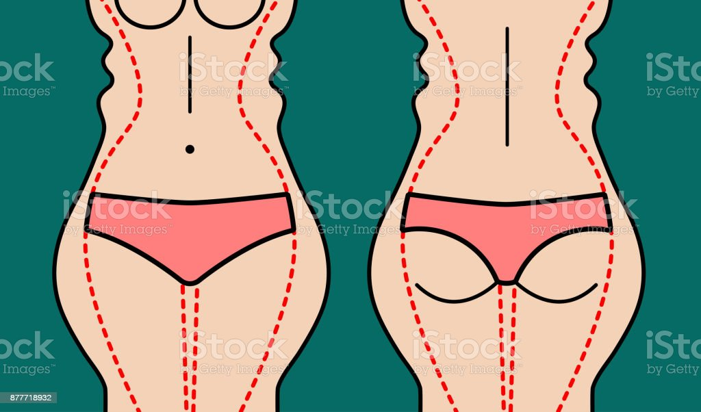 Liposuction Of Body Stock Illustration - Download Image Now - iStock
