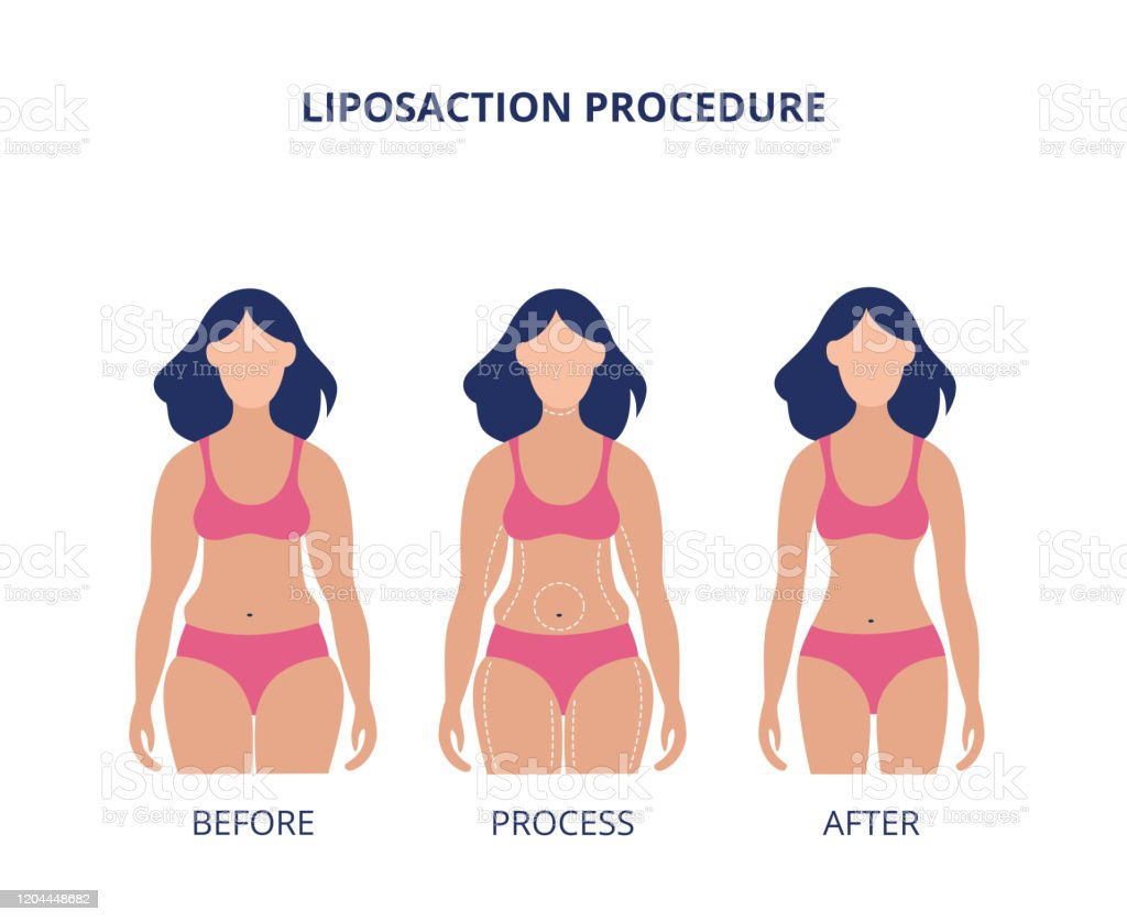 Liposuction Procedure Before And After Banner Flat Vector Illustration Isolated Stock Illustration Download Image Now Istock