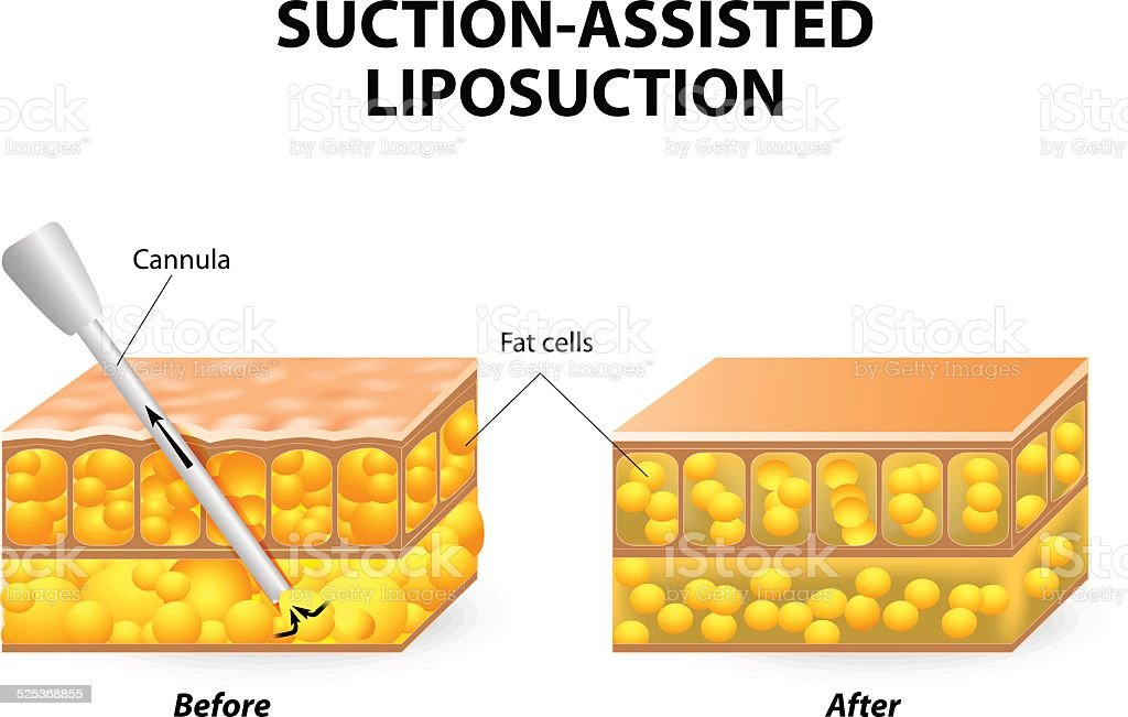 Liposuction Stock Vector Art & More Images of Adipose Cell 525368855 ...