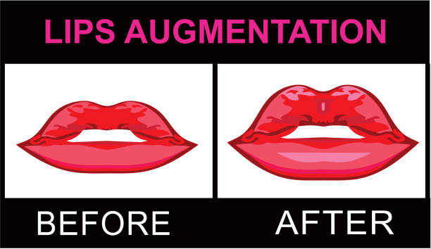 Lips Augmentation before and after vector art illustration