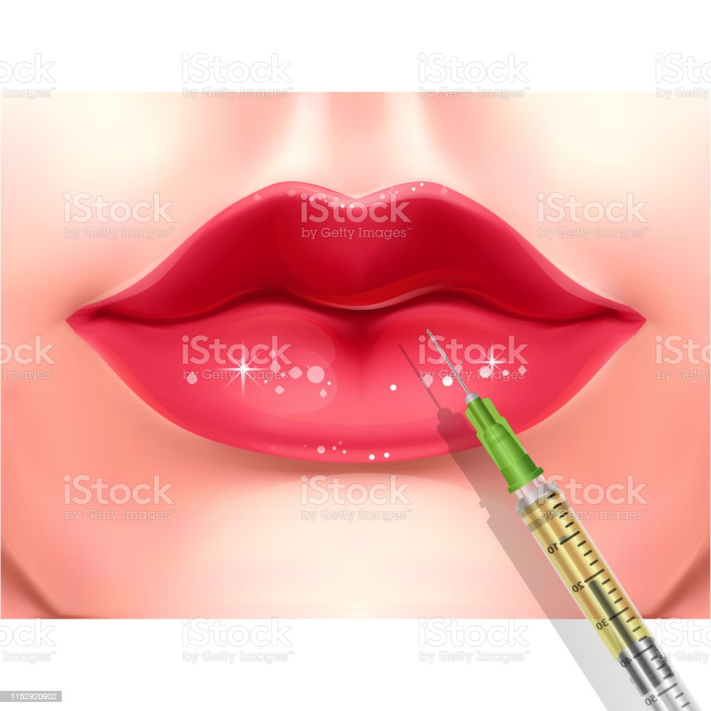 Lips Injection Lip Augmentation Injectable Cosmetic Filler