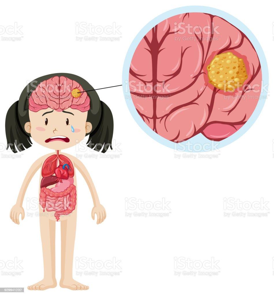 Kleine Mädchen Und Gehirn Krebs Stock Vektor Art und mehr Bilder von ...