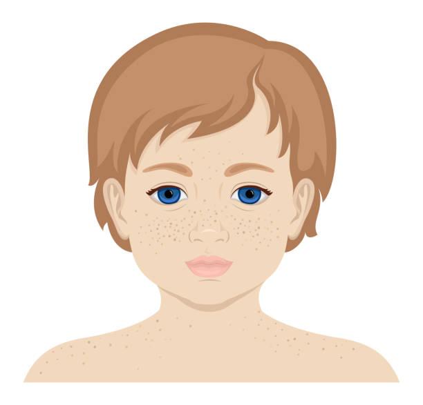 ilustraciones, imágenes clip art, dibujos animados e iconos de stock de niña con pecas - ojos azules