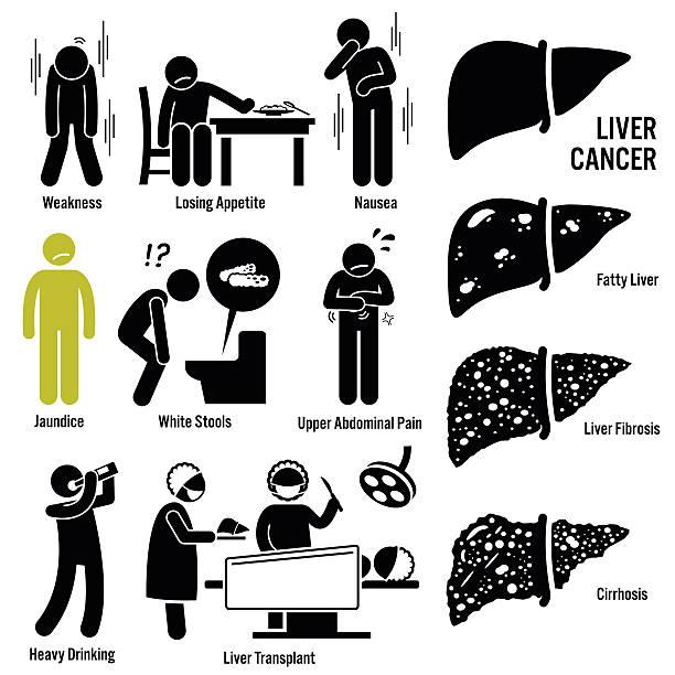 liver cancer symptoms transplant illustrations - cancer patient stock illustrations