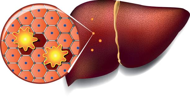 Liver Cells Attacked by Toxins Medical illustration of healthy liver cells attacked by toxins bile stock illustrations