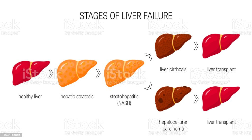 Liver Damage Vector Concept Stock Vector Art More Images Of