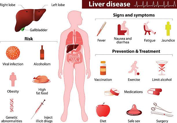 liver disease. Medical infographic liver disease. Medical Infographic set elements and symbols for design. bile stock illustrations