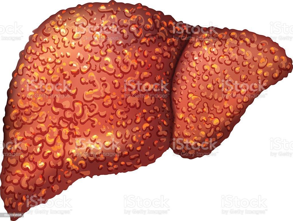 Dieta para un enfermo de hepatitis a