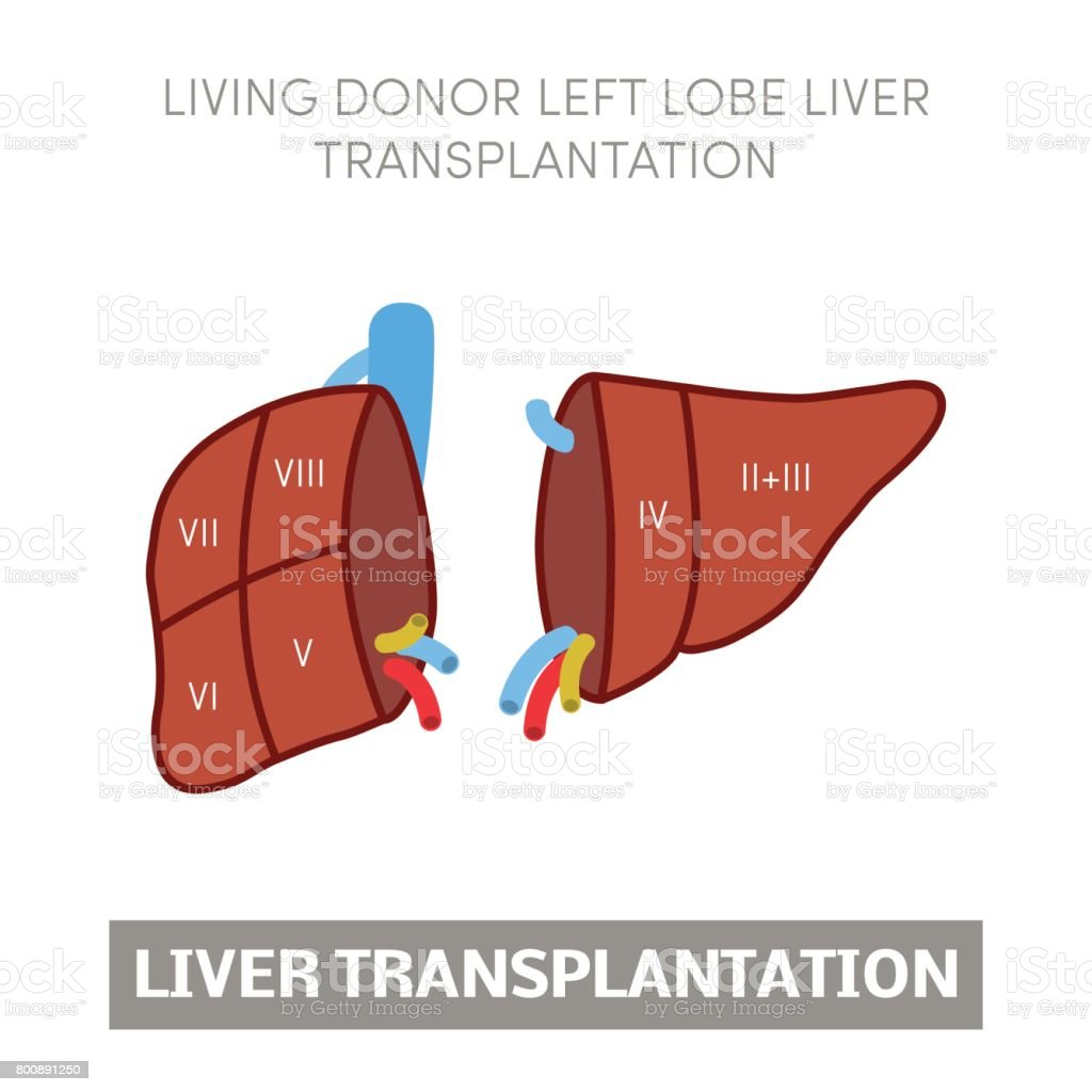 Liver Transplantation Concept Stock Vector Art More Images Of