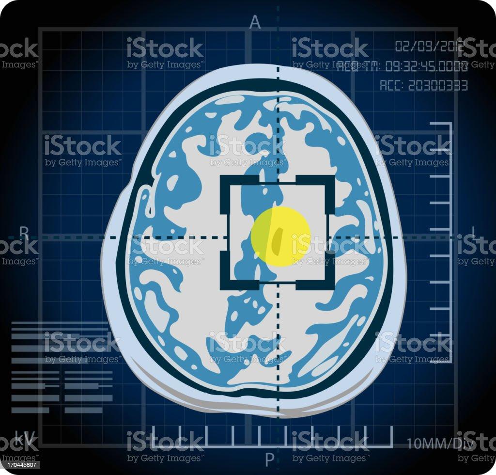 MRI - Locate vector art illustration