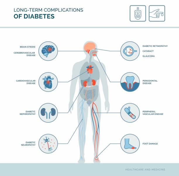 Long-term complications of diabetes vector art illustration