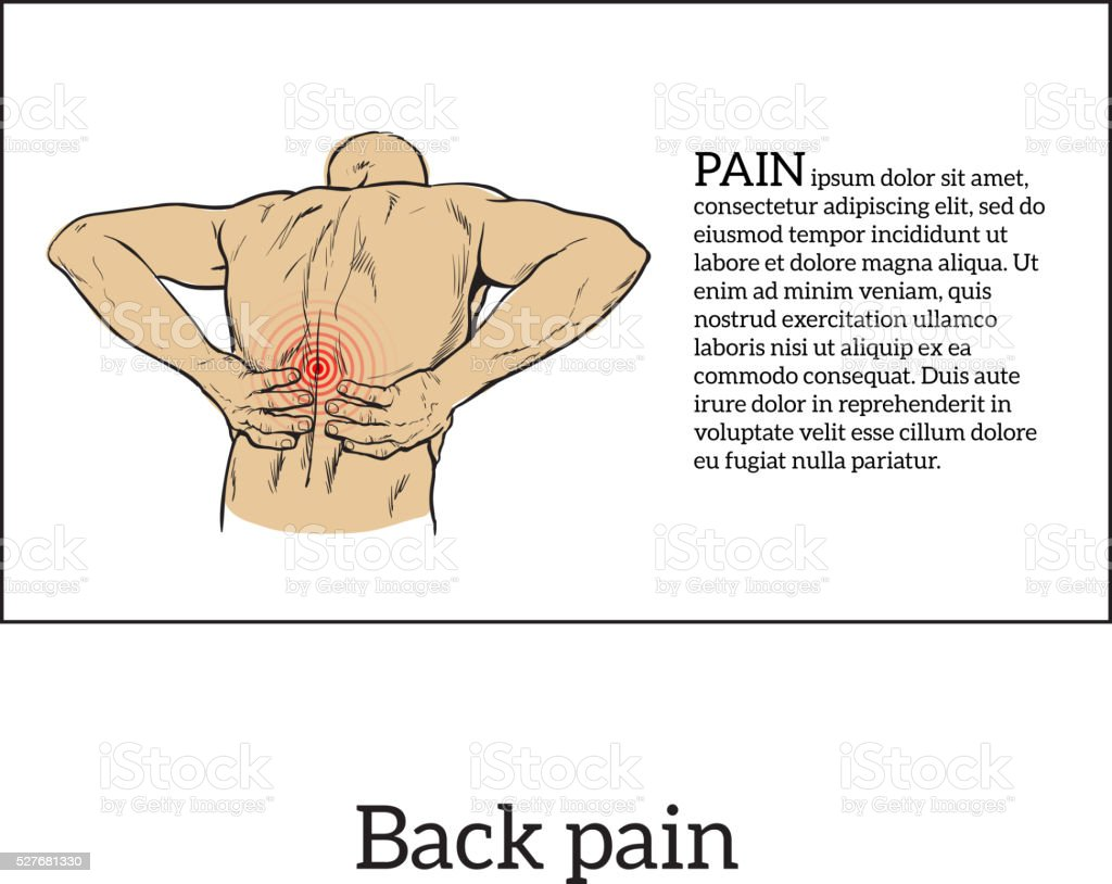 Unteren Rücken Schmerzen In Männer Schwarzweiß Skizze Stock Vektor ...