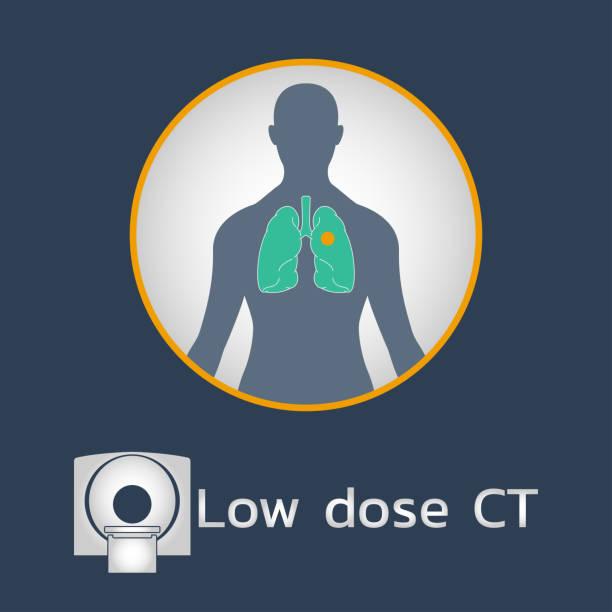 illustrazioni stock, clip art, cartoni animati e icone di tendenza di low dose ct scan logo icon design, medical vector illustration - dose