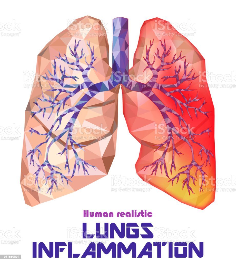 Low poly realistic human lungs and bronchus with cancer inflammation disease. Vector. vector art illustration