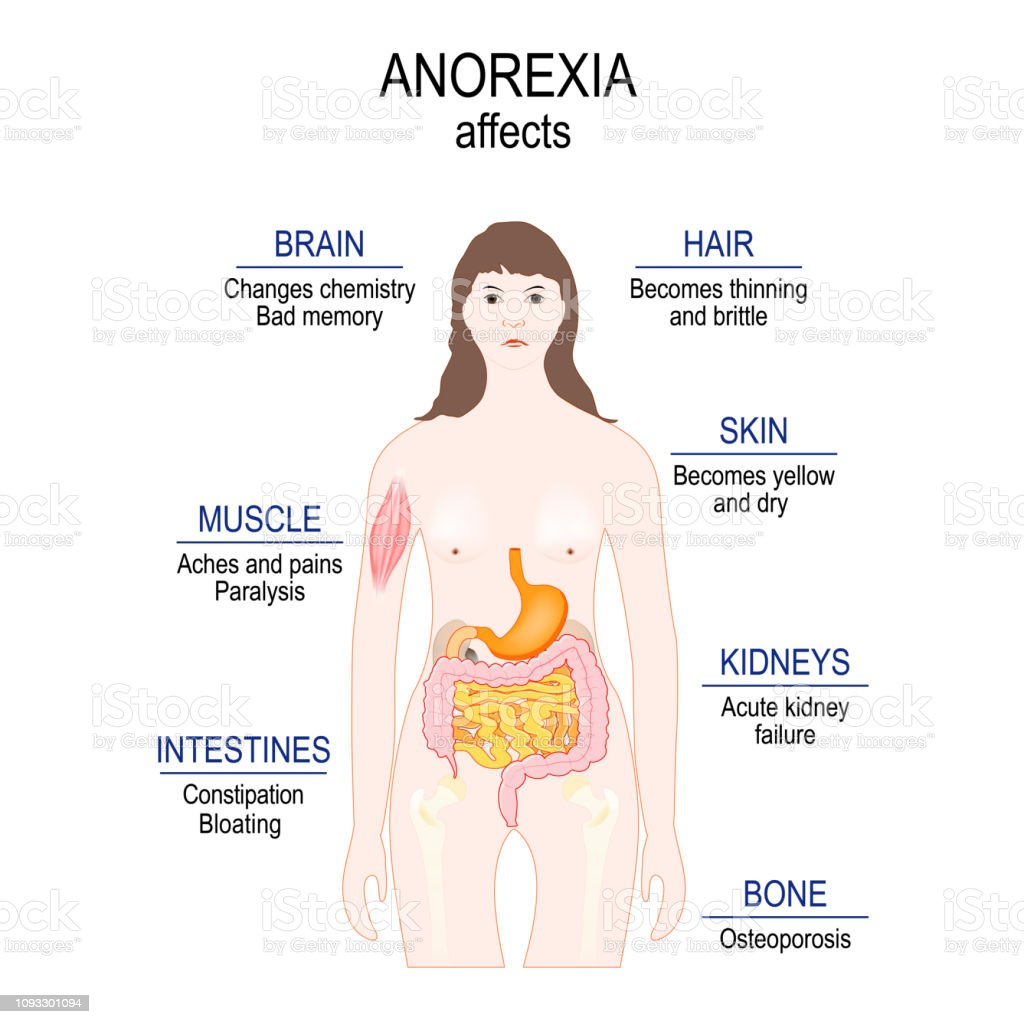 low weight. Anorexia affects. vector art illustration