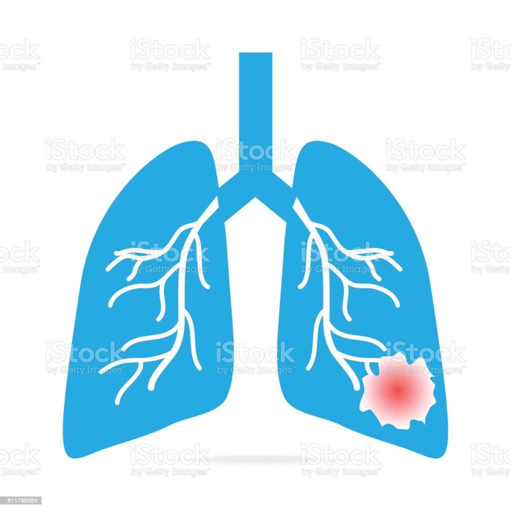 Lunge Krebs Blaue Symbol Medizinisches Konzept Abbildung Stock ...