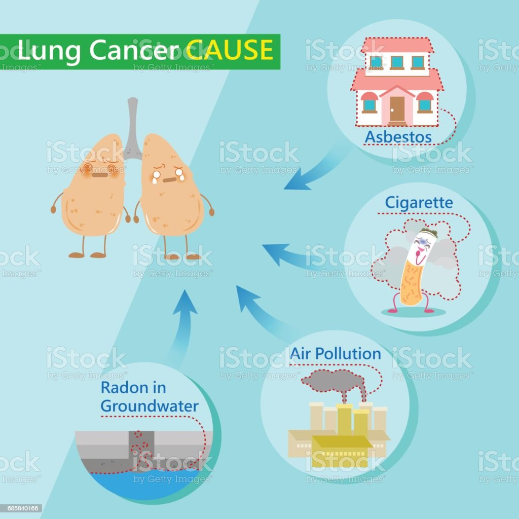 lung cancer causes vector art illustration