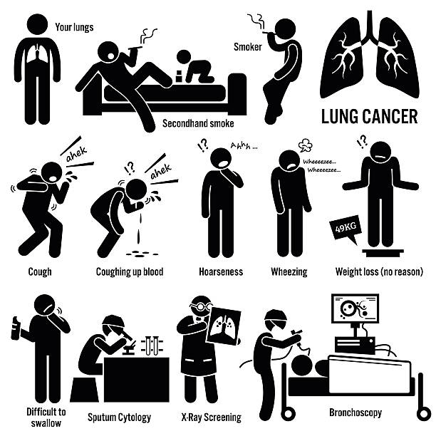 Lung Cancer Illustrations Set of illustrations for lung cancer disease which include the symptoms, causes, risk factors, and the diagnosis for the illness. cancer illness stock illustrations