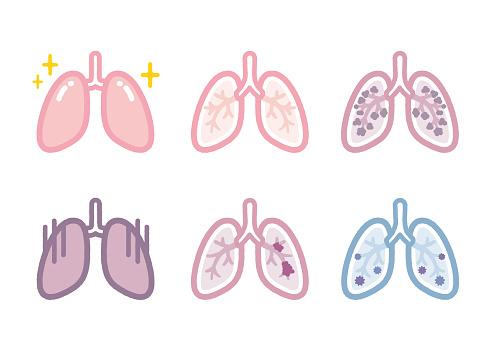 Lung disease illustration