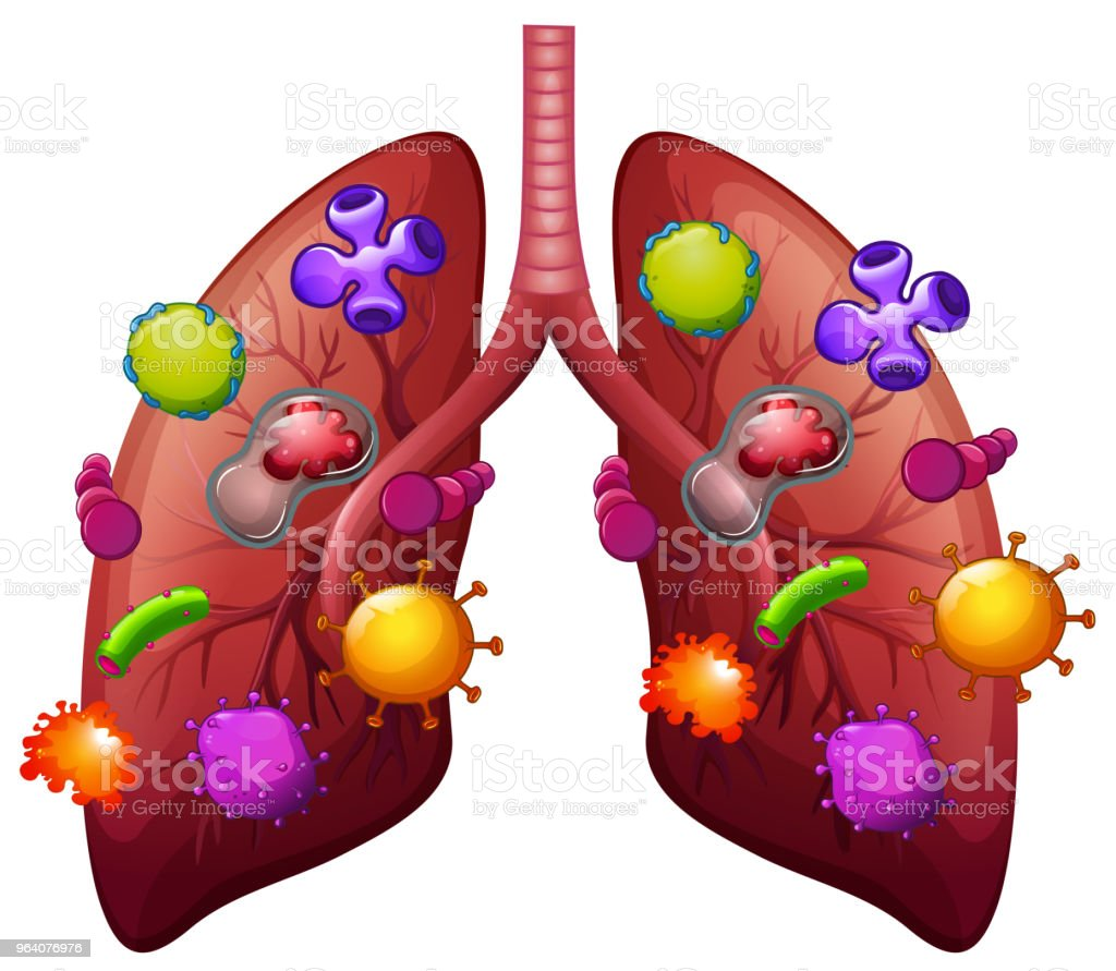 Lungs covered with bacteria illustartion - Royalty-free Art stock vector